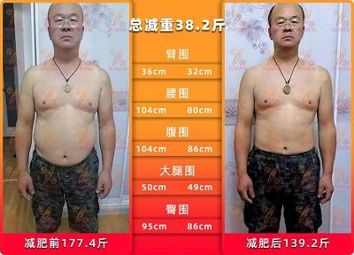 52岁大叔第一次减肥,百分燃脂助他有效减肥38.2斤